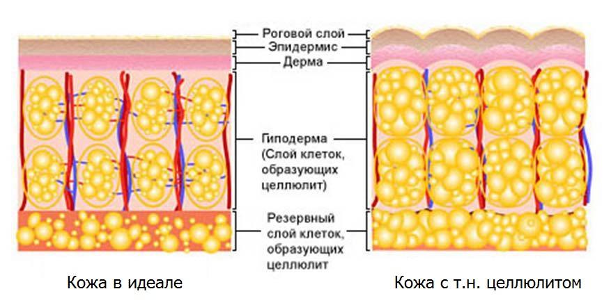Целлюлит Тазовый