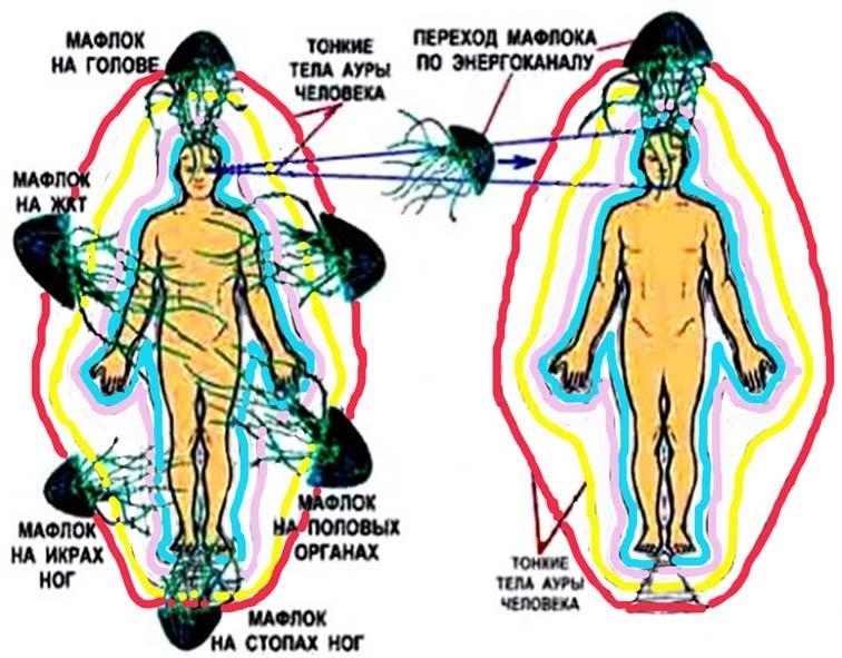 паразиты под кожей человека видео