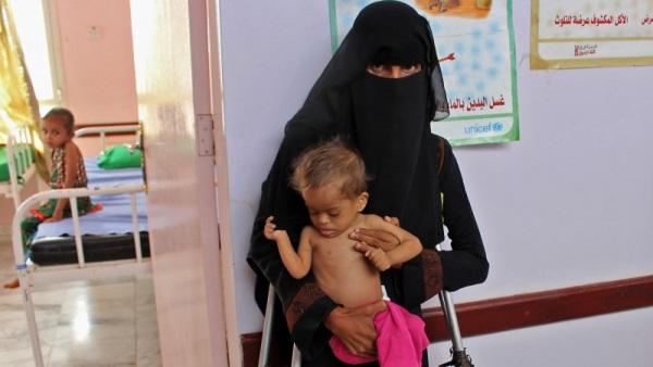 ЮНИСЕФ: Йеменские дети даже в больницах находится не в безопасности – Фото 14