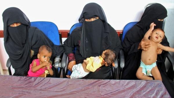ЮНИСЕФ: Йеменские дети даже в больницах находится не в безопасности – Фото 19