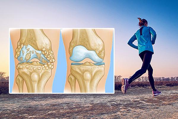 57e67ce0fc24 Как избежать замены коленного сустава   Блог Виктор Пак   КОНТ