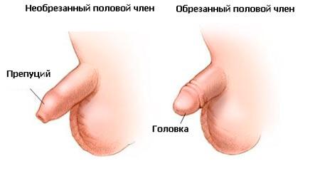 Половои член болезни мужчин